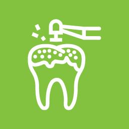 Ošetření zubního kazu – bílé výplně